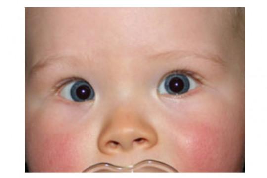 ما هي أنواع حول العينين لدى الأطفال،وكيف يتم علاجها؟ - فيديو