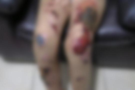 رجل يعذب ابنه ويحرقه بالأسيد