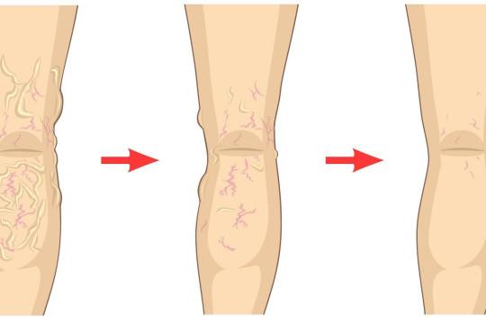ما أسباب الإصابة بدوالي الساقين؟ - فيديو