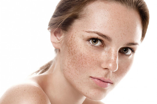 طرق عديدة لإزالة النمش من الوجه