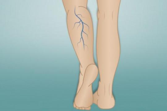 استشاري جراحة: 1 من بين 3 أشخاص معرضون للإصابة بدوالي الساق - فيديو