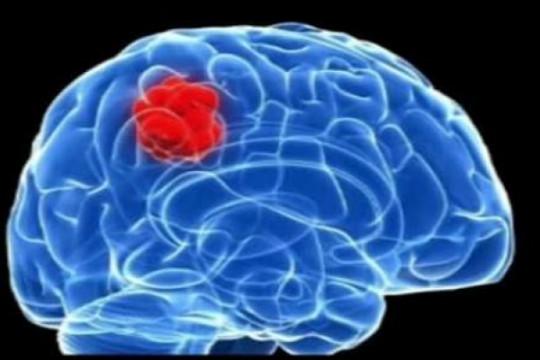 استشاري جراحة دماغ: 50% من أورام الدماغ أورام حميدة - فيديو