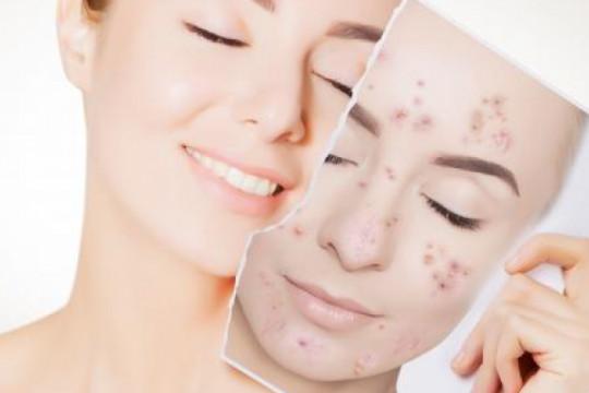 طبيبة جلدية: أحدث التقنيات لا يمكنها إخفاء ندب البشرة بشكل كامل - فيديو